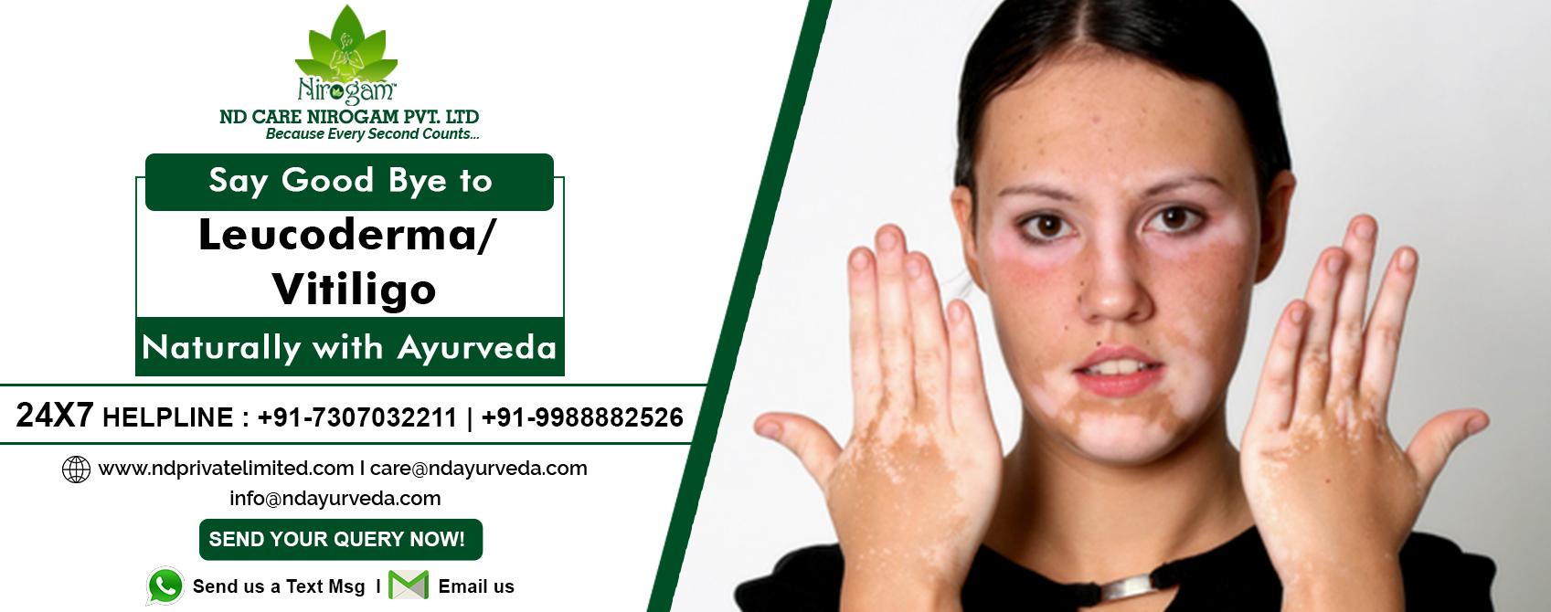 Ayurvedic Treatment of Leucoderma,Vitiligo   ND Care Nirogam Pvt  Ltd